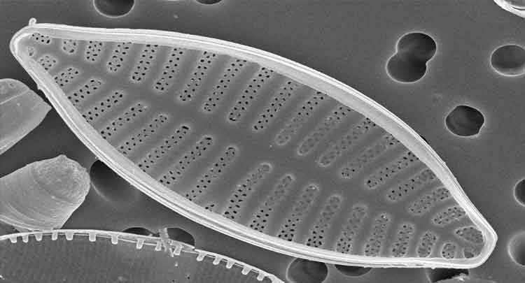 Foto de Reino Protista – Características, protozoários, algas e mais